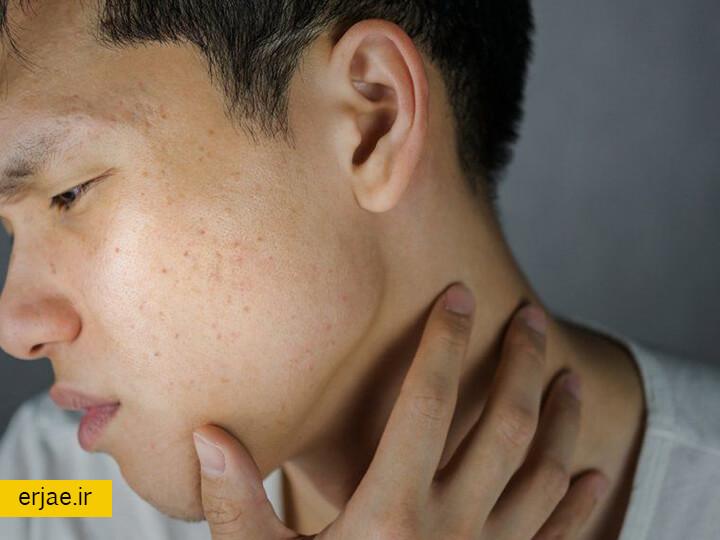 خواص روغن آرگان برای بیماری های پوستی